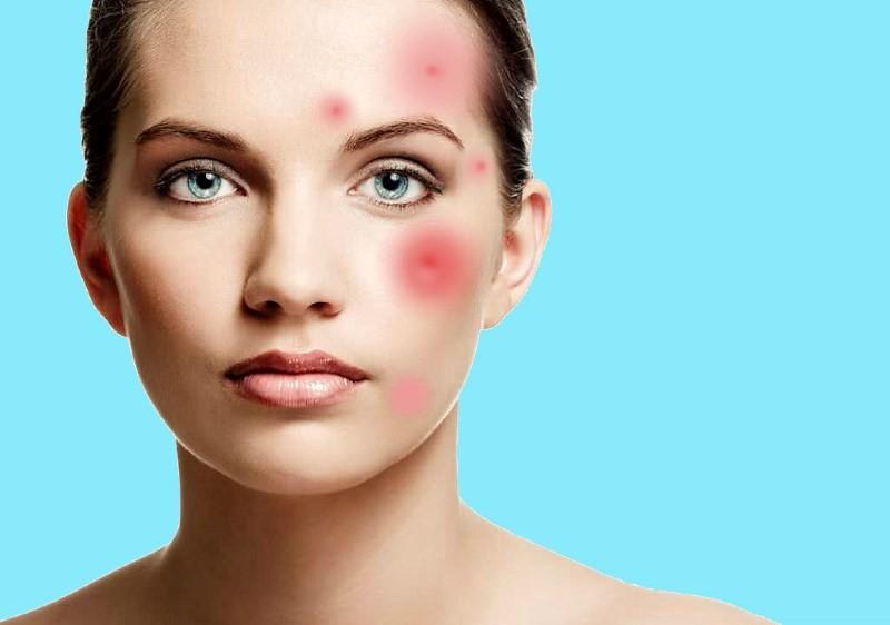 Самая эффективная противовоспалительная маска для лица